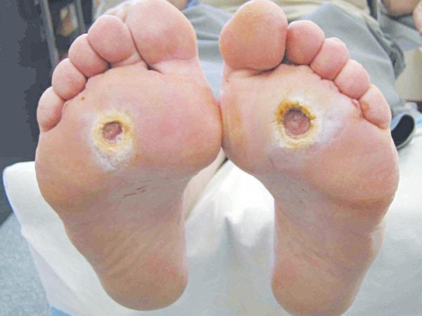 Người bệnh như thế nào thì dễ phát sinh bệnh chân tiểu đường