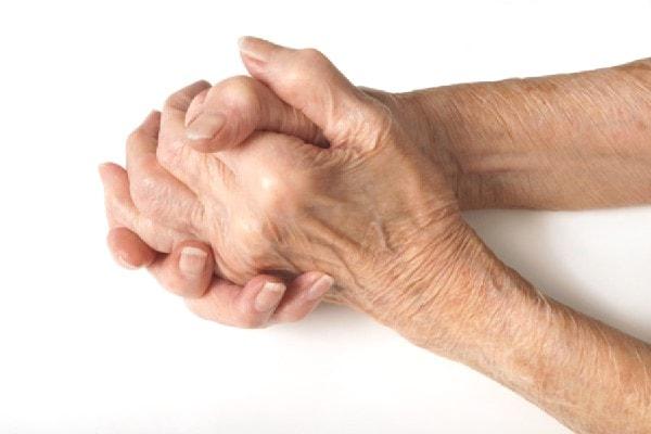 Nguyên nhân chính gây bệnh Gout là có sinh hoạt ăn uống không hợp lý