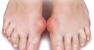 Người bị bệnh Gout nên ăn gì và kiêng gì?