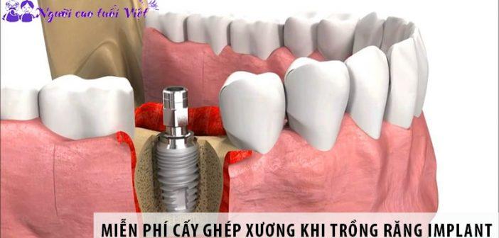 Hỗ Trợ miễn phí cấy ghép xương khi trồng răng Implant