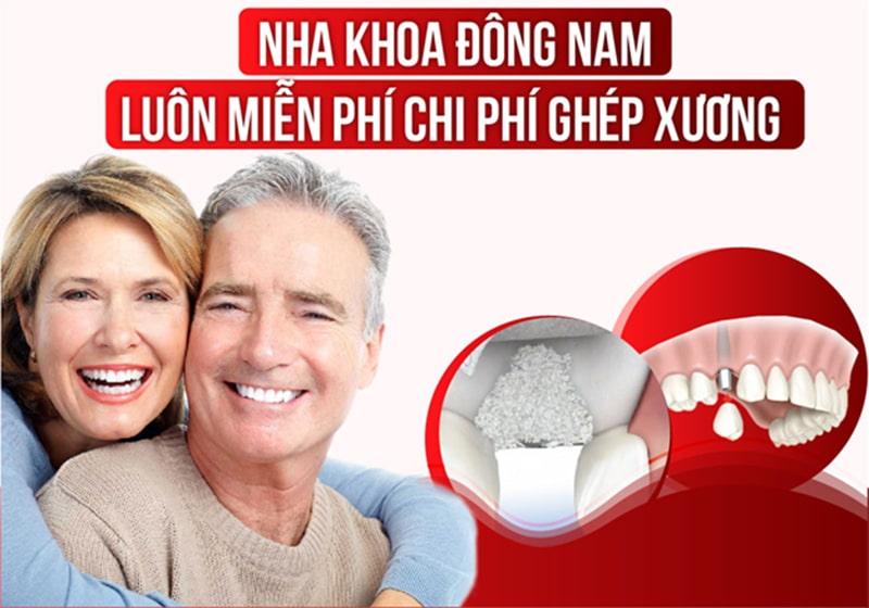 Hỗ trợ miễn phí cấy ghép xương khi trồng răng Implant 1