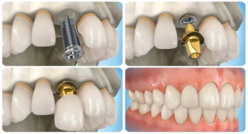 Mô phỏng kỹ thuật cấy ghép Implant