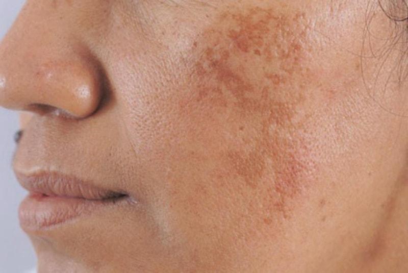 Tăng sắc tố - Nguyên nhân chủ yếu gây nám da